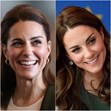Kate Middleton, Botox